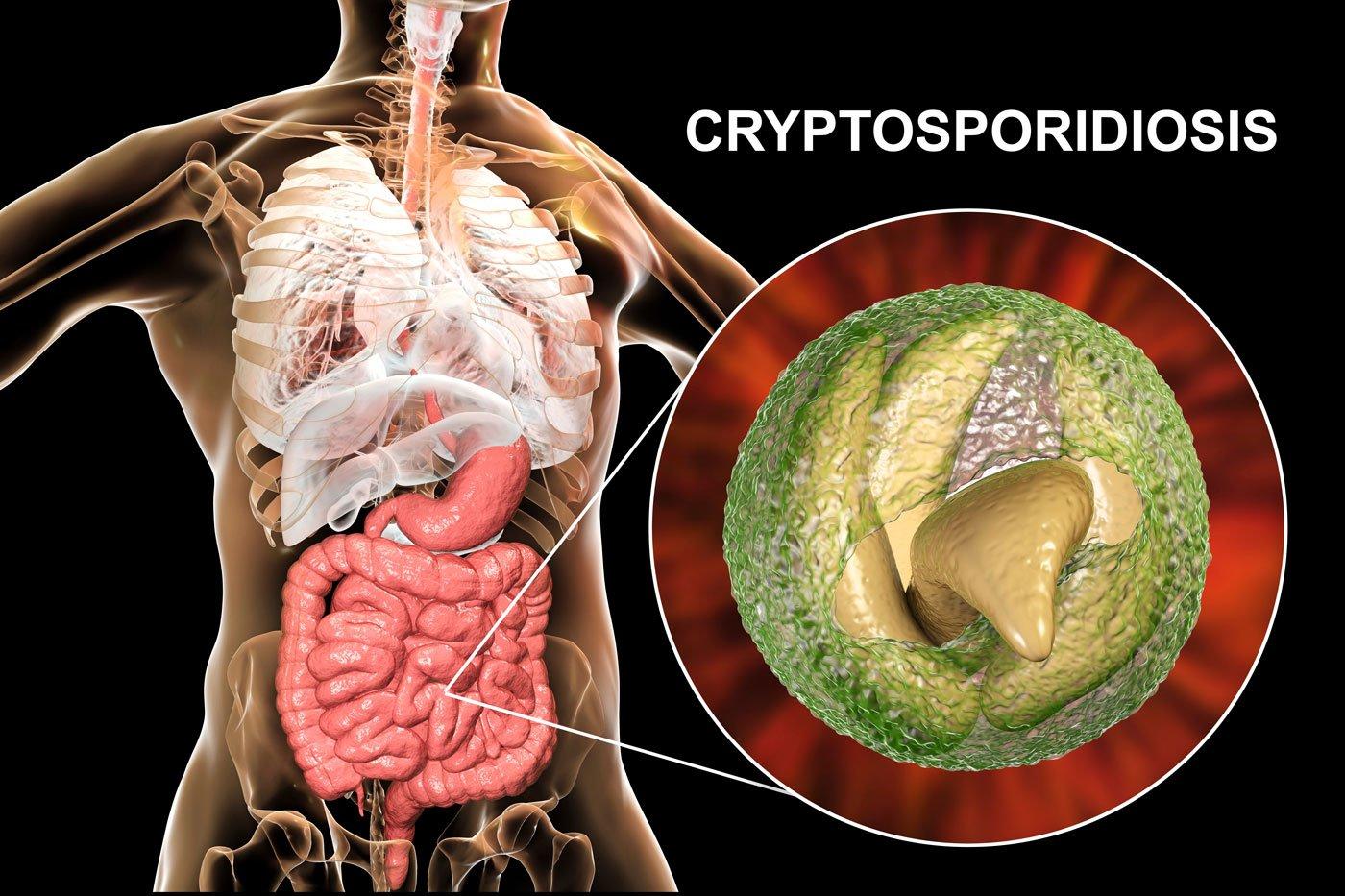 Cyrpto Disease